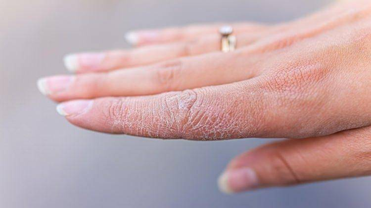 Kuruyan Eller İçin Ne Yapılır